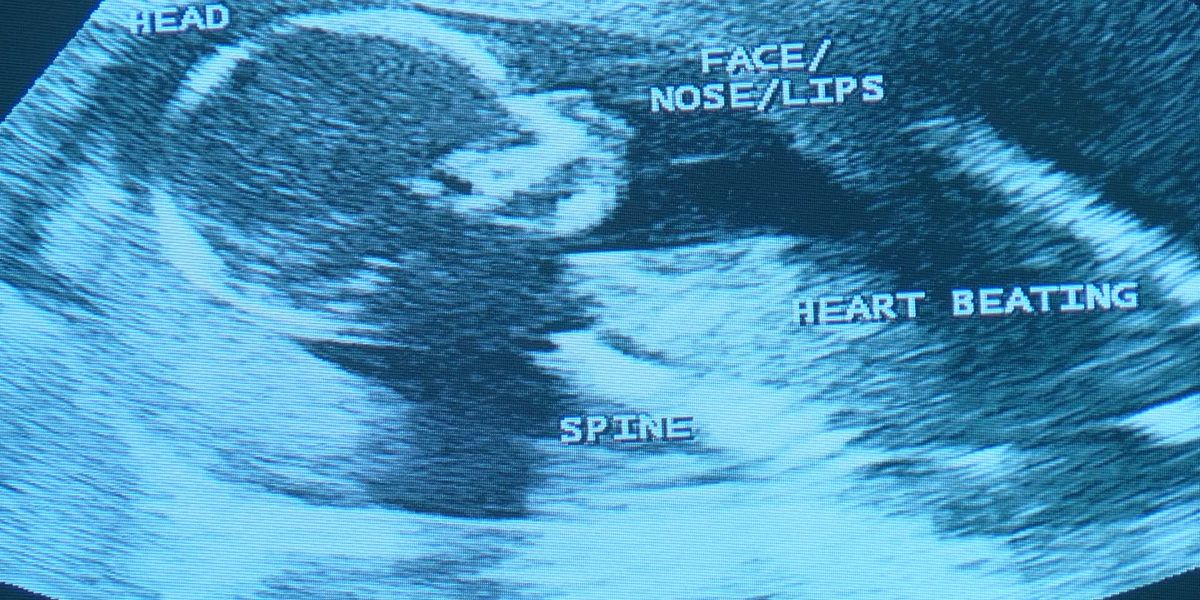 Mississippi heartbeat law banning most abortions heads to federal court