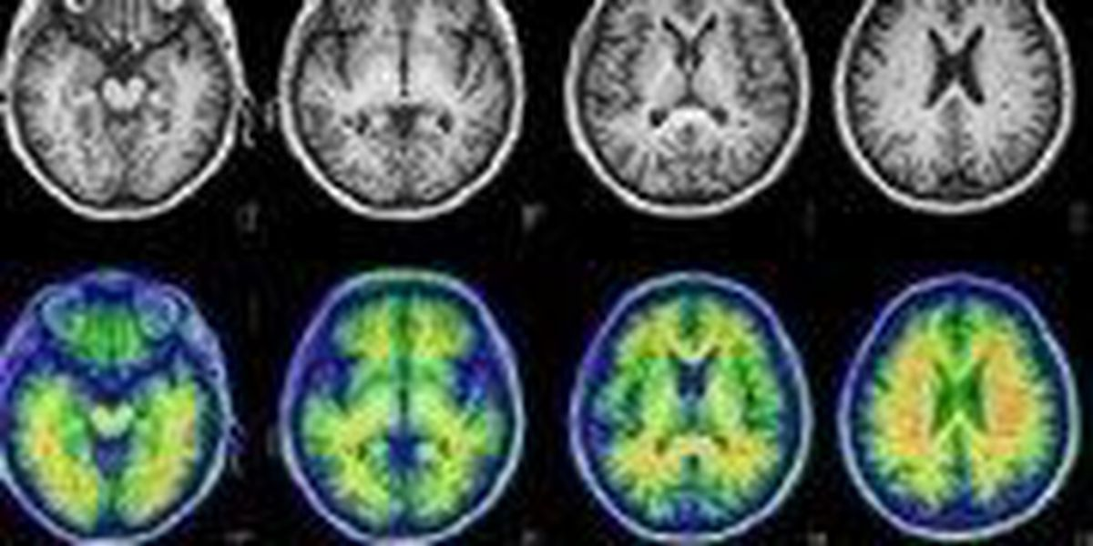 Hattiesburg Clinic offers largest brain scanning research for Alzheimer's in MS