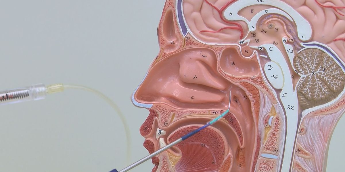 New medical technology helps blocked sinuses