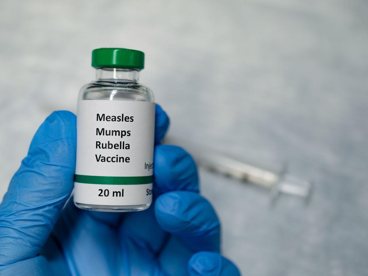 Health officials alert of measles exposure in Hattiesburg area