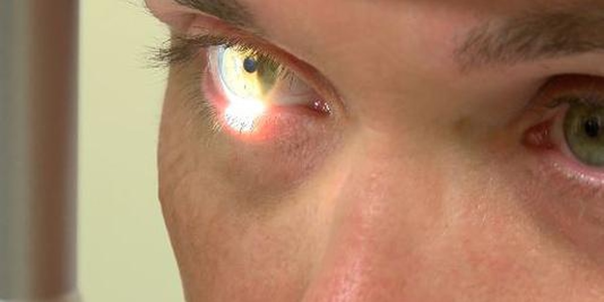 Keep your eyes safe in the summer sun