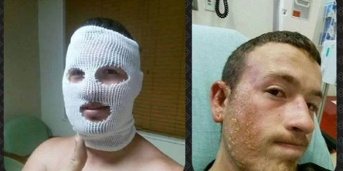 UPDATE: Man burned after altercation with deputy officially charged